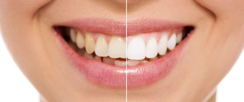 Как отбелить зубы: топ-5 видов отбеливания