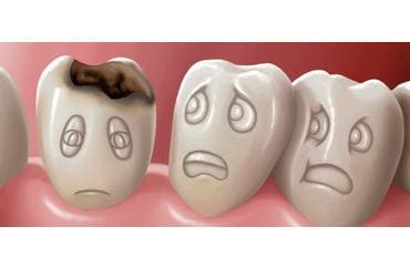 Дырки в зубах от нехватки йода